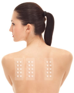 patch test training
