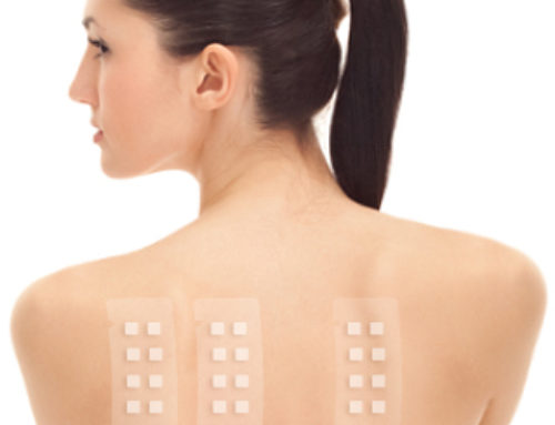 Filling the Gap in Patch Test Training