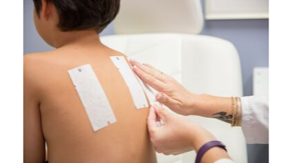 young male patient having patch test strips applied to his back