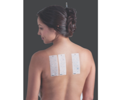 Experts Recommend a Patch Test Before Prescribing Dupixent.