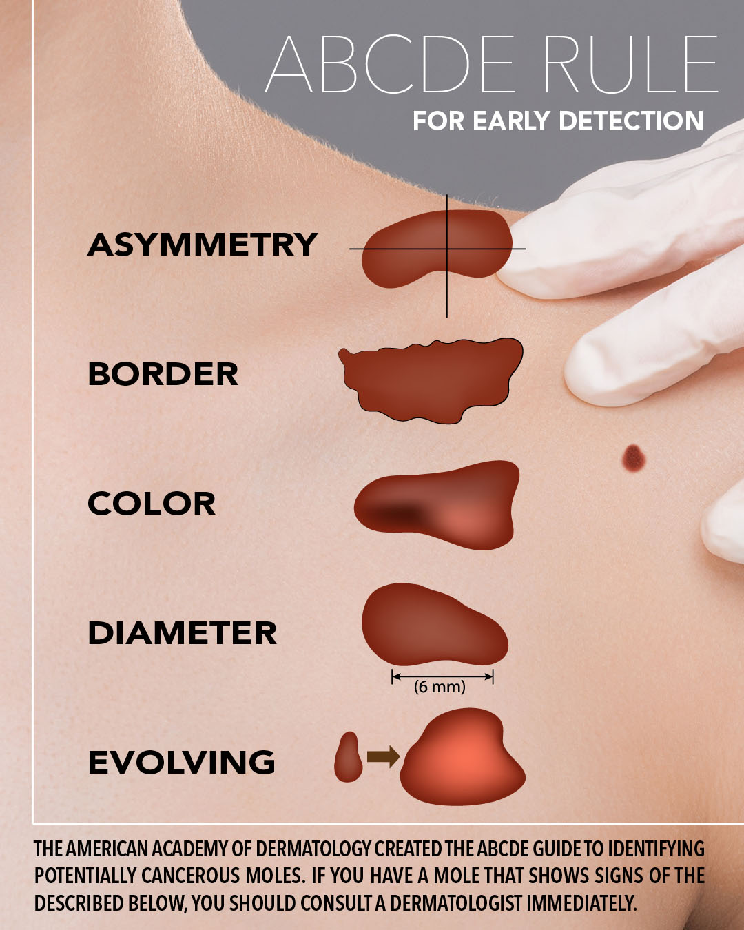 Follow the ABCDE Rule for early skin cancer detection